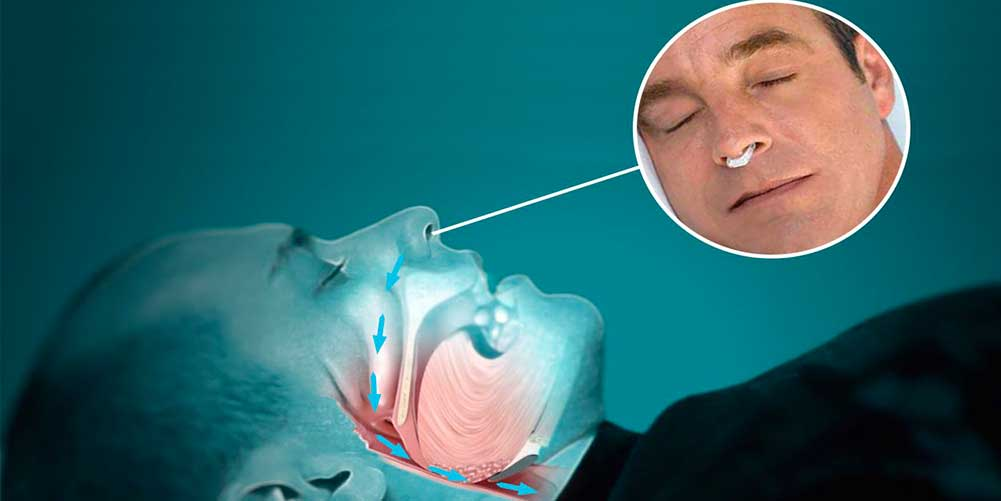 3. Noseclip - An effective and natural remedy to reduce snoring